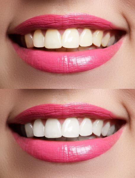 Отбеливание зубов с применением профессиональных систем