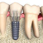 Поздняя имплантация зубов