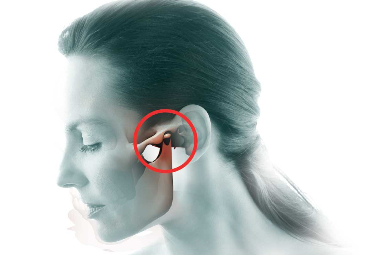 Боль в височно-челюстном суставе